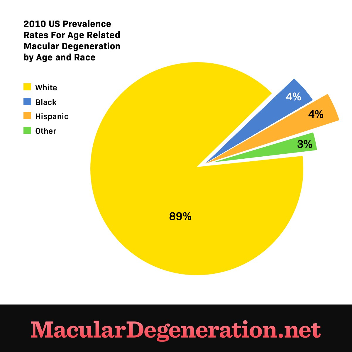 89 percent of those diagnosed with age related macular degeneration are white