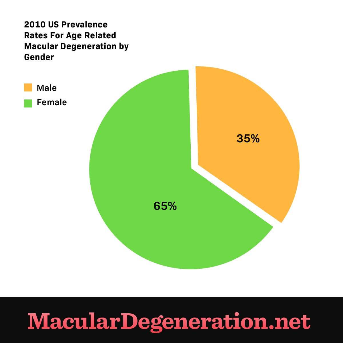 65 percent of those diagnosed with age related macualar degeneration are female