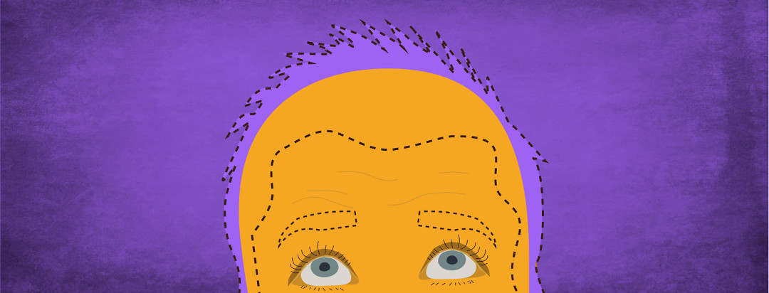The top half of a person's head with a dotted outline where hair and eyebrows used to be.