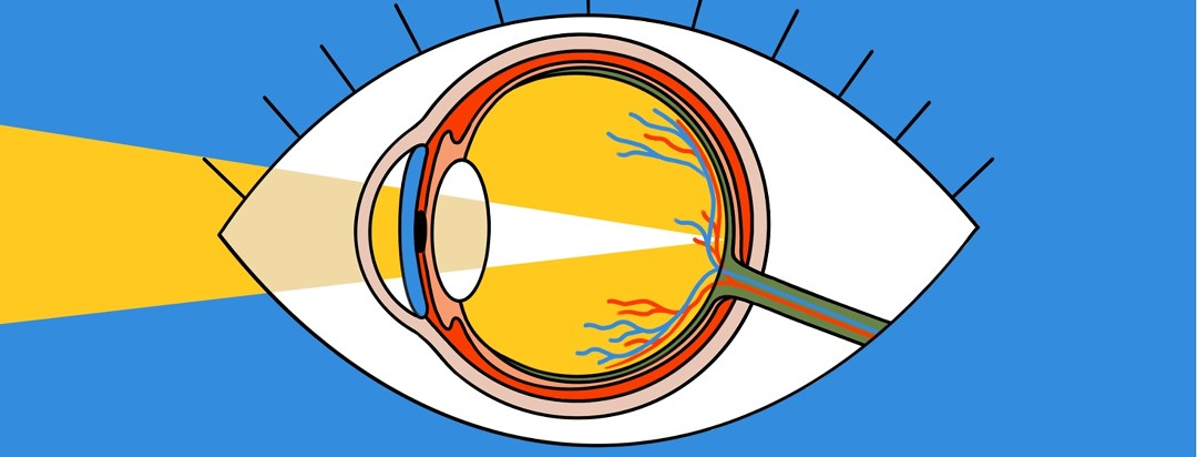 An anatomical drawing of an eye with light entering it is on top of a cartoon drawing of an eye.